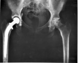 Recovery time for hip replacement