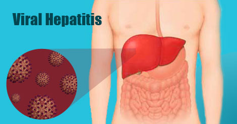 Viral hepatitis and White Stool Color