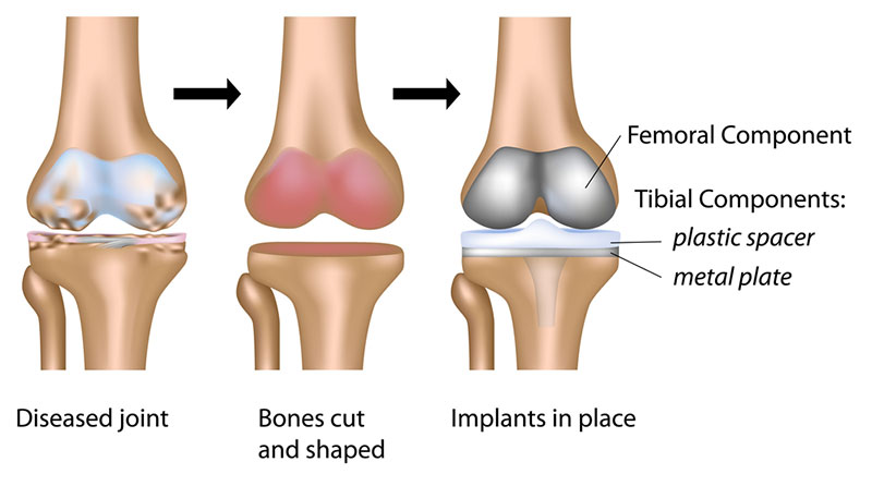 Hurt after total knee replacement