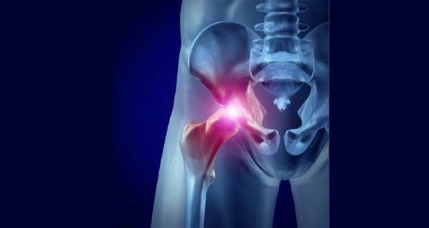 hip flexor strain and abdominal pain