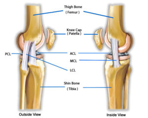 knee hyperextension pain in back of knee
