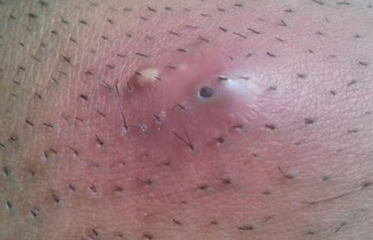 Treatment for Infected Ingrown Pubic Hair