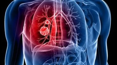 lung cancer pain