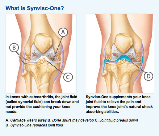 Side Effects of Using Synvisc