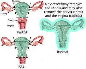 Partial Hysterectomy
