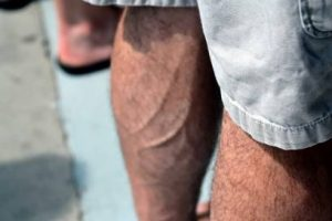 blood clots in legs treatment