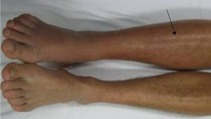 blood clots in legs and feet