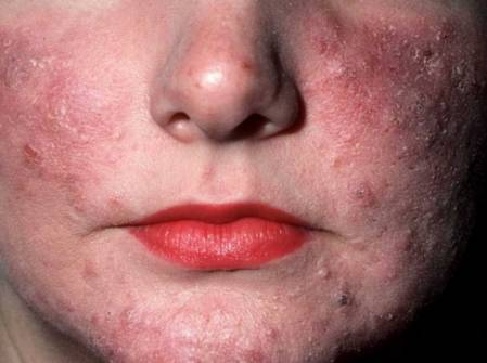 rosacea in women