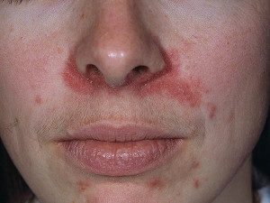 dry skin around mouth and nose