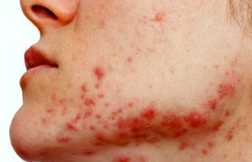 polycystic ovarian syndrome acne help