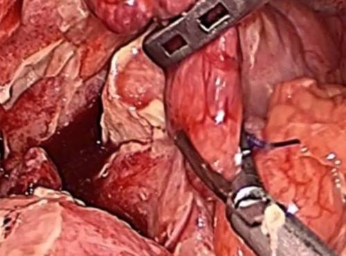 what does feel like when your appendix burst? | iytmed, Cephalic Vein