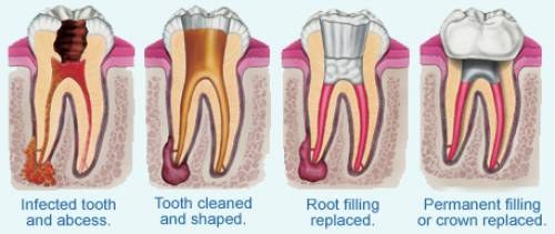 Root Canal Procedure | IYTmed.com