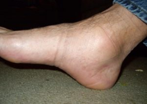 sore ankles and feet after sitting