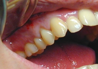 pain relief for severe gum infection