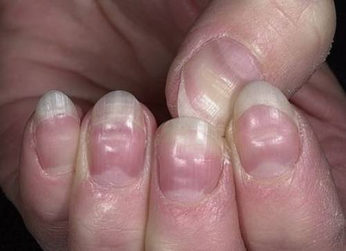 Horizontal Ridges in Fingernail
