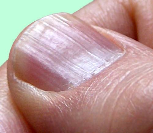 Vertical Fingernail Ridges