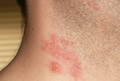 Shingles without Rash