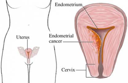 Endometrial Thickening