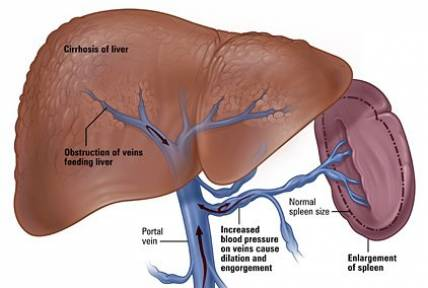 Elevated Liver Enzymes: Causes and Symptoms | IYTmed.com