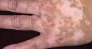 A variety of health conditions and factors can cause white spots to develop on different parts of the body.