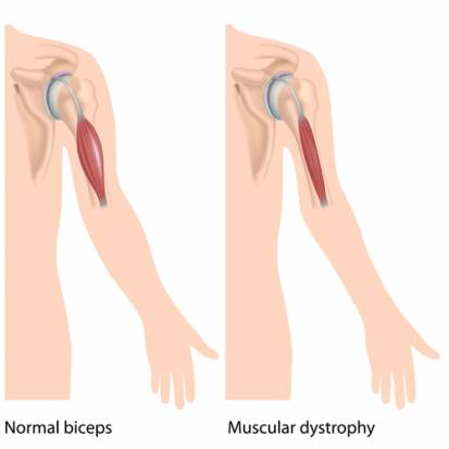 Muscular Dystrophy in Adults