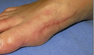 Scar tissue on foot (image)