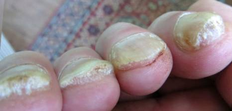 Soften hard toenails