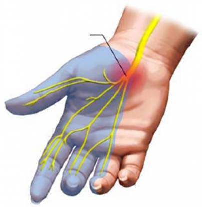 What causes carpal tunnel syndrome during pregnancy?