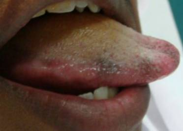 Black Bumps on Tongue