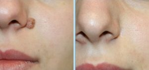 how to remove moles on face