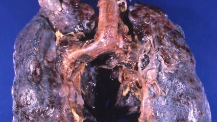 COPD in smokers