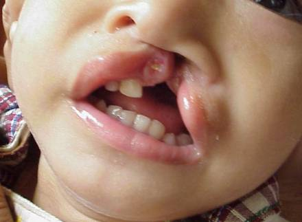 what causes cleft palate