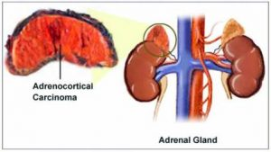 Adrenal Gland Cancer