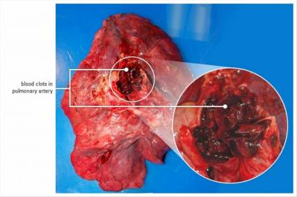symptoms of blood clot in lung