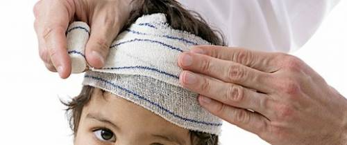 signs of head injury