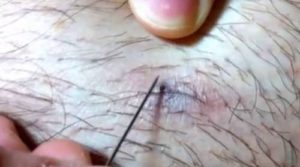 Ingrown Hair Cyst