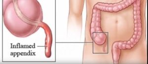 what side is appendix on the body