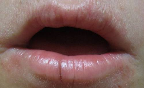 discoloration in your lip