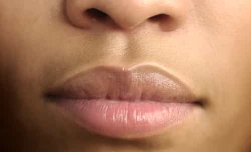 Upper lip color change
