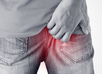 What Causes Itchy Anus in Men