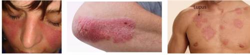 Lupus skin pictures - how does it look like