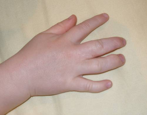 What Causes Swollen Hands in the Morning? | IYTmed.com