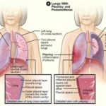 how long does pleurisy last