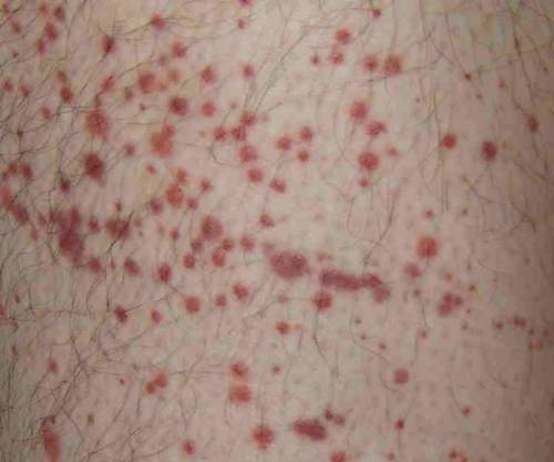 what is idiopathic thrombocytopenic purpura