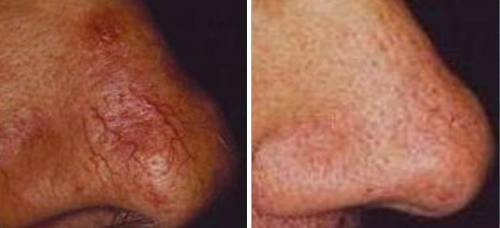 how to get rid of spider veins on nose