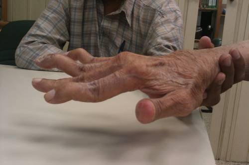 what does arthritis feel like in your hands