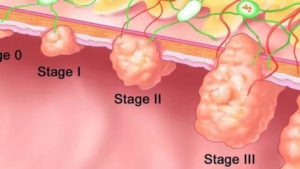stage 4 colon cancer survival rate