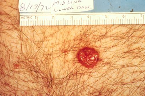 basal cell skin cancer picture