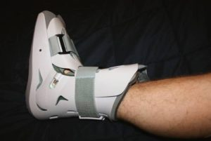 Feeling Stress Fracture in the Foot