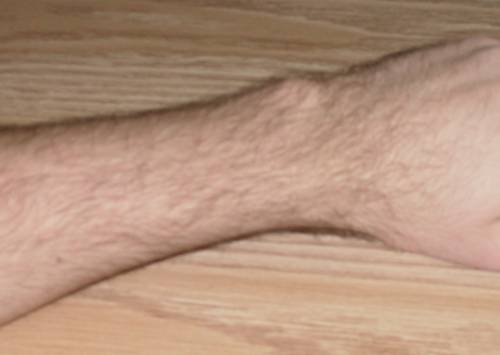 Lump on Wrist Bone Hurts